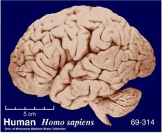 The human brain consumes about 22 W of power under